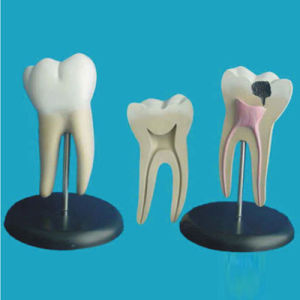 Human Pathological Molar Teeth Anatomic Model for Teaching (R080103) pictures & photos
