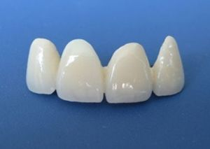 E-Max Crowns and Bridges Made in China Dental Laboratory pictures & photos