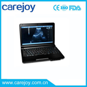 10 Inch Notebook Ultrasound Scanner with Convex Probe (RUS-9000F) -Fanny pictures & photos