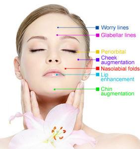 Ce Singfiller Acido Hialuronico Dermal Filler for Cheek Nose Lip pictures & photos