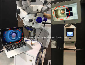 Surgery Microscope Full HD Video Adapter (CCD Adapter) pictures & photos