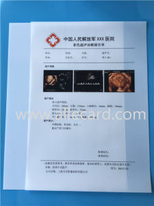 Low Cost! Dry Ultrasound Film/ Ultrasound Film/ Medical X-ray Film pictures & photos