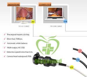 My-P029 Medical Protable Ent Endoscope USB Camera pictures & photos