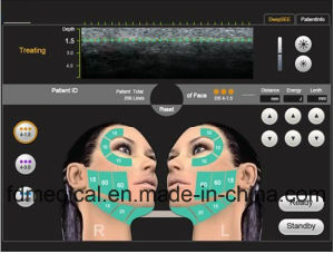 2017 New Professional Skin Rejuvenation Hifu Beauty Machine pictures & photos