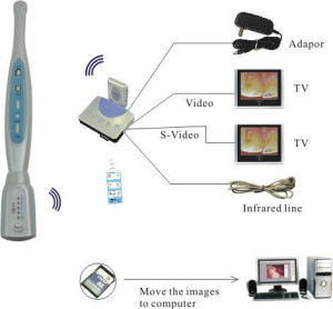 SD Card Memory Dental Intra Oral Cameras pictures & photos