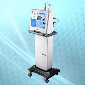 Dermatrix- fractional RF(radio frequency)machine