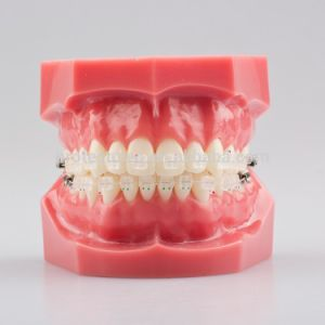 Orthodontic Ceramic Bracket Asthetic Bracket with Orthodontic Typodont pictures & photos