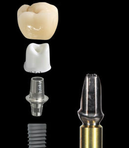 Dental Custom Abutments Compatible with Nobel, Straumnn, Dentium, Mis, Astra Tech, Zimmer, Dio, Osstem From China Dental Lab pictures & photos