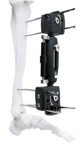 Xcaliber Ortho Fix Radiolucent Tibia Fixator Xcaliber Meta-Diaphyseal Fixator