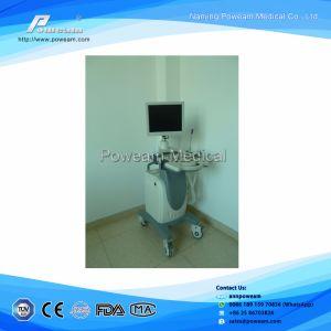 Sonoscape Ultrasound Scanner pictures & photos