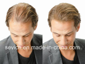 Sevich Raw Material Hair Treatment Hair Building Fiber pictures & photos