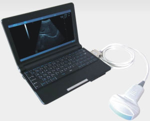 B Mode Laptop Portable Ultrasound Diagnosis Equipment pictures & photos