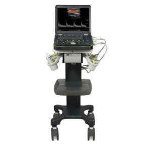 Bcu-60 Doppler Ultrasound Pregnancy Scanner pictures & photos