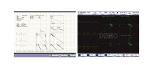 12 Leads Twelve Channel ECG Machine EKG Holter Touchscreen Ce pictures & photos