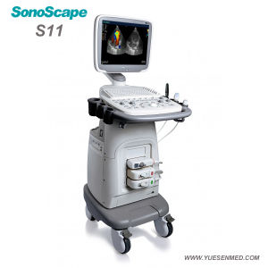 Sonoscape S11 Color Doppler Trolley Ultrasound Machine Check Pregnancy Ultrasound Machine China pictures & photos