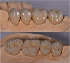 Pfm Crown for Denture From Chinese Dental Lab pictures & photos
