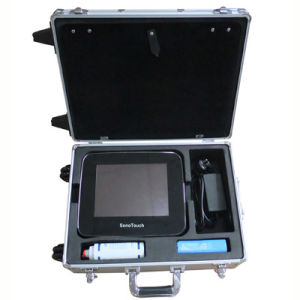 Ultrasound Scanner Color Doppler Laptop Touchscreen (SC-ST30) pictures & photos