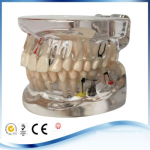 Dental Implant Disease Study Teaching Teeth Model Restoration Bridge Tooth pictures & photos