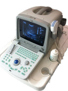 Good Cost Performance Best Sale Portable Ultrasound Machine pictures & photos