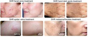 FDA Professional IPL Shr Laser Skin Rejuvenation and Hair Removal pictures & photos