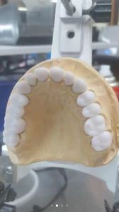 Full Zirconia Crow From Chinese Dental pictures & photos