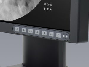 1MP 1280X1024 LCD Medical Grade Monitor for X Ray Medical Equipment CE pictures & photos