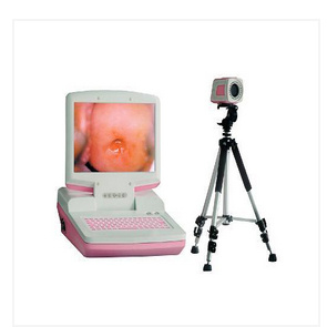 Digital Electronic Colposcope (Portable type)
