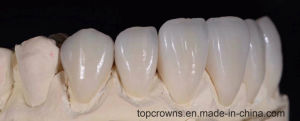 Dental Supplies of Cocr Porcelain Crowns pictures & photos