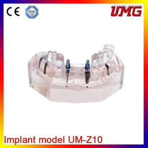 Dental Model Permanent Teeth Model and Hot Sale Teeth Models pictures & photos
