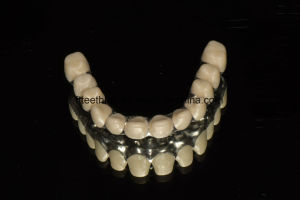 Full Ceramic Zirconia Implant Bridge with High Aesthetic pictures & photos