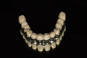 Full Ceramic Zirconia Implant Bridge with High Aesthetic pictures & photos