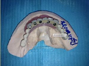 Implant Pfm Non-Precious Bridge From Chinese Dental pictures & photos