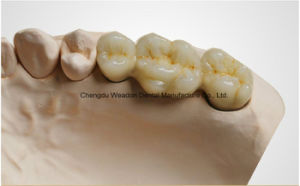 Metal Crown for Denture From Chinese Dental Lab pictures & photos
