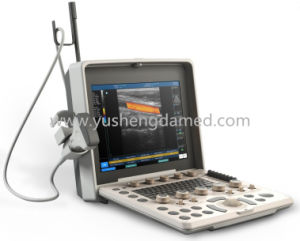 Medical/ Hospital Equipment Portable B/W Ultrasound Scanner pictures & photos