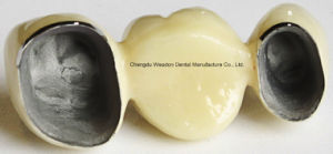 Pfm Bridge Denture for Clinic From Chinese Lab Center pictures & photos
