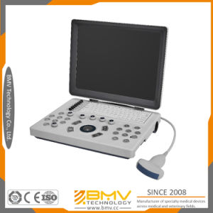 Bcu10 Portable Hand-Carried B/W Diagnostic Ultrasound System pictures & photos
