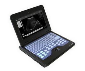 Portable B-Ultrasound Scanner -Newest (CMS600P2-ON SALE) pictures & photos