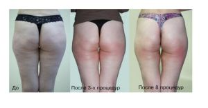 Kuma Slimming Electrical Equipment Zerona Laser Fat Reduction Non-Invasive Liposuction with Ce. Tga, FDA pictures & photos