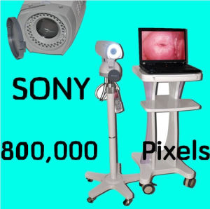 Latest Digital Video Electronic Colposcope Javier pictures & photos