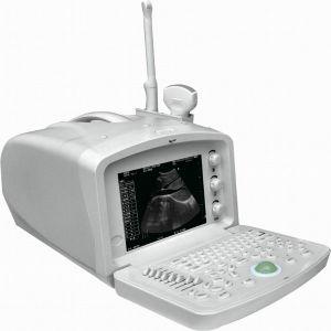 Digital Mediccal Ultrasound Machine PC Platform Based Ce Approved Ysd1203 pictures & photos