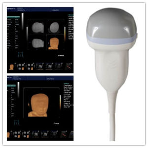 Medical Equipment of Trolley Ultrasound Scanner K10 pictures & photos
