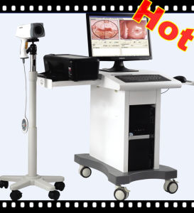 Cheap Hot Sale Electronic Colposcope pictures & photos
