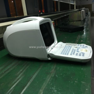 Ce Approved Medical Equipment Abdominal Digital Portable Ultrasound Scanner Ysd1201 pictures & photos