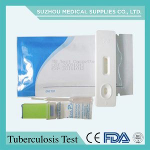 Diagnosis Equipment for Testing HIV, Pregnancy, Gonorrhea, Malaria, Tb, Rapid Test pictures & photos