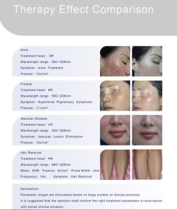 Permanent Hair Removal IPL Machine Shr Laser Device with Ce Approved pictures & photos