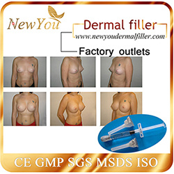 Beauty Use Hyaluronic Acid Filler for Breast Enhancement pictures & photos