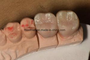 Full Contour Zirconium Bridge Made in China Dental Lab pictures & photos