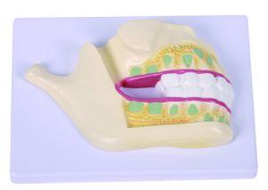 Deciduous Teeth Model pictures & photos