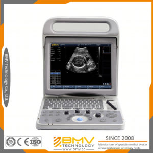 Bcu20 Best Price and Good Quality Medical Device Diagnostic Ultrasound for Hospital and Clinic pictures & photos