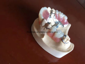 Dental Framework Denture pictures & photos